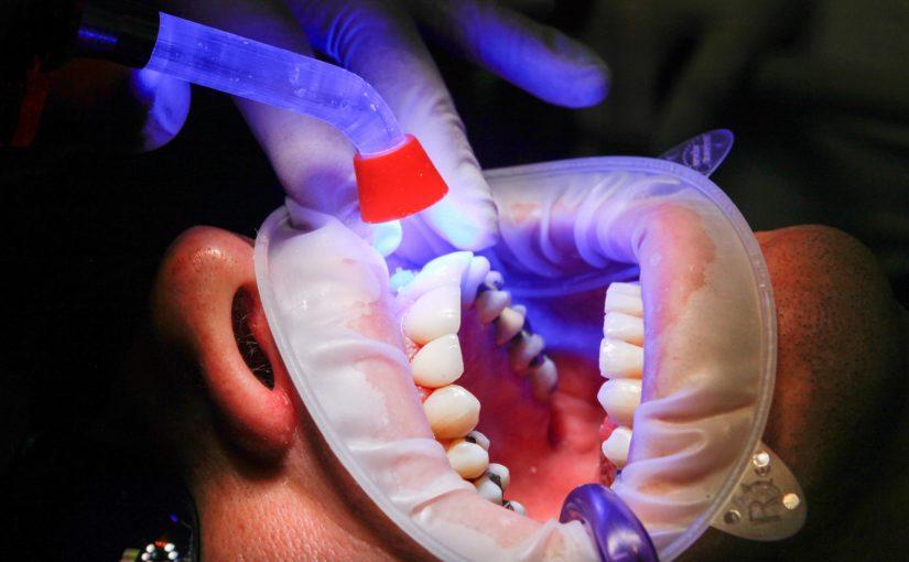 Zły sposób odżywiania się to większe ubytki w jamie ustnej natomiast również ich utratę